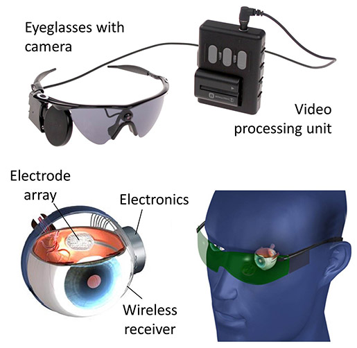 The Bionic Eye
