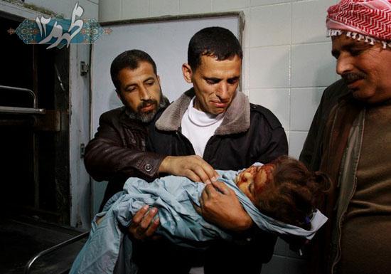 دختر بچه کشته شده توسط حمله ی هواپیماهای اسرائیلی در غزه