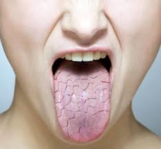پزشکی: خشکی دهان