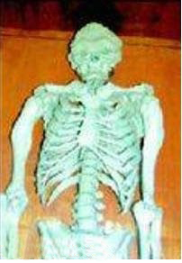 مطالب داغ: عجیب الخلقه ترین مرد ایرانی در تاریخ