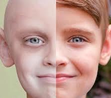 پزشکی: سرطان چیست؟-قسمت دوم