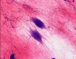 img/daneshnameh_up/b/b3/spinal_cord_nerve_cells_4w.jpg