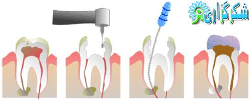 عصب کشی_آموزش تصویری_دندان پزشکی_دندان درد