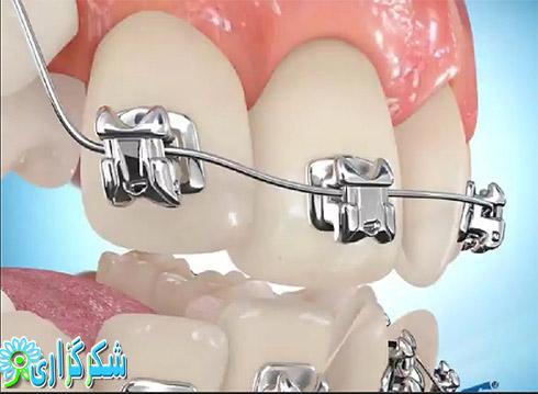 ارتودنسی دندان ها_توصیه پزشکی_عکس_تصویر_راهنما_اطلاعات_نحوه