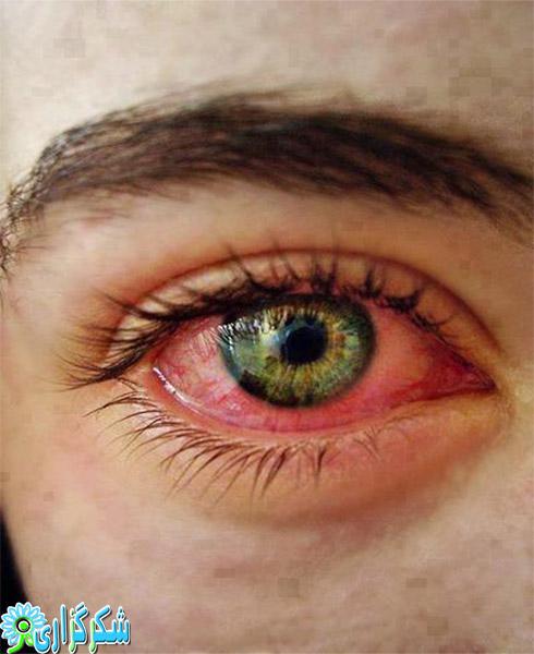 عکس قرمز شدن چشم_قرمزی چشم_چرا در چشم ها خون جمع می شود؟