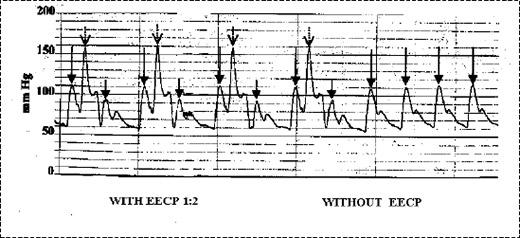 مقایسه فشار سیستول و دیاستول با EECP و بدون EECP