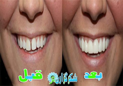 دندان های فاصله دار_ارتودنسی_درمان