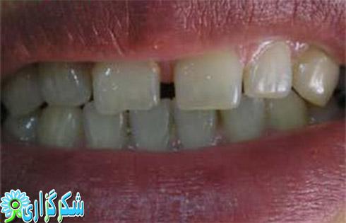 فاصله افتادن بین دندان ها_وب سایت اطلاعات دندان پزشکی به زبان ساده
