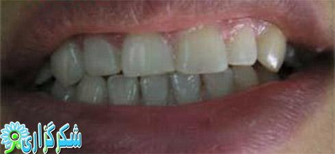 فاصله افتادن و زشت شدن دندان ها_درمان_دانستنی های دندانپزشکی برای همه