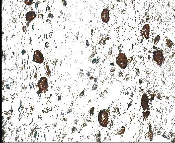 سگمنت کردن تصویر با الگوریتم DBSCAN