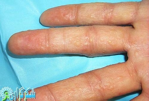 اگزما_بیماری اگزما_اگزما بر روی پوست دست_درمان اگزما