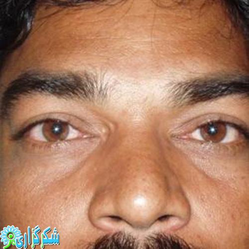 تیروئید چشمی-بیماری تیروئید-عکس-تصویر-چشم
