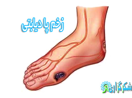 زخم پا-عکس-دیابت-درمان-پیش گیری-جلوگیری