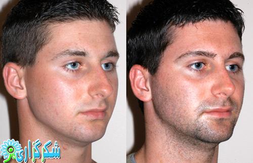 عکس جراحی بینی-قبل-بعد-جراحی زیبایی بینی-عکس-تصویر-عمل-زیبایی