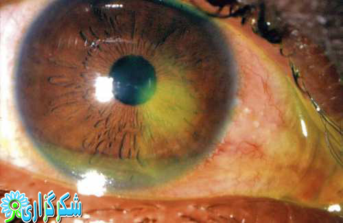 چشم_قرنیه_عکس_قرمزی چشم_تیروئید