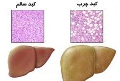 پزشکی: کبد تان را پاکسازي کنيد