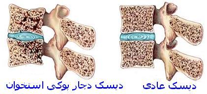 پزشکی: سن پوکی استخوان در بین ایرانی ها