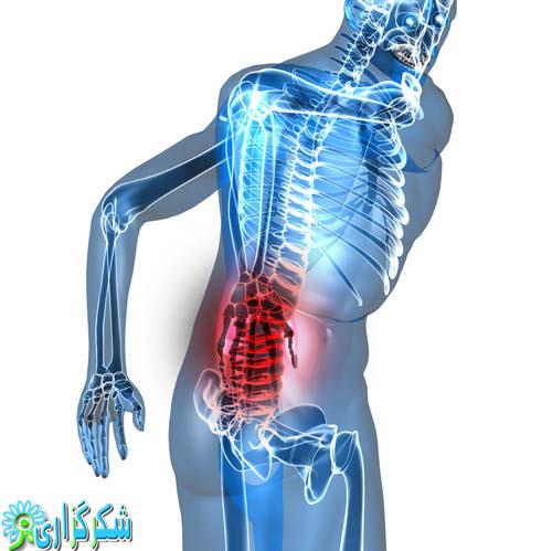 سیاتیک-عکس-کمر درد-درمان-رگ-عصب-سیاتیک