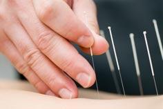 طب سوزنی: نقش طب سوزنی در درمان بیماری ها
