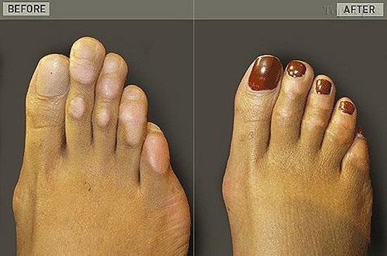 عمل زیبایی بر روی پای خانم ها؟!؟!؟!