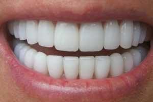 علت بوی دهان, بوی سیر دهان, دندان سفید,دهان و دندان