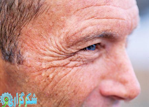 چین-چروک-پوست-دور-چشم-زیبایی-عکس-تصویر-پیری