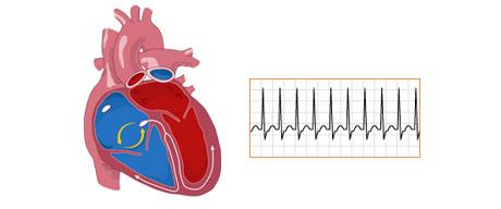 علل ایجاد تپش قلب