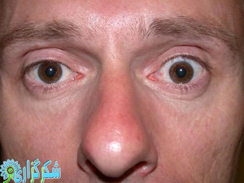 تیروئید-چشمی-عکس-تصویر-علت-دلیل-پیشگیری-درمان