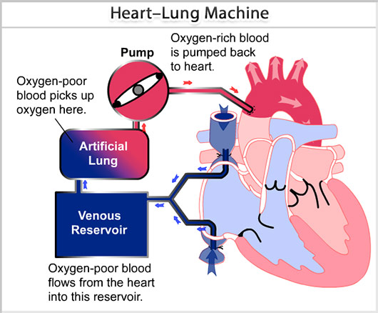 Heart–Lung Bypass