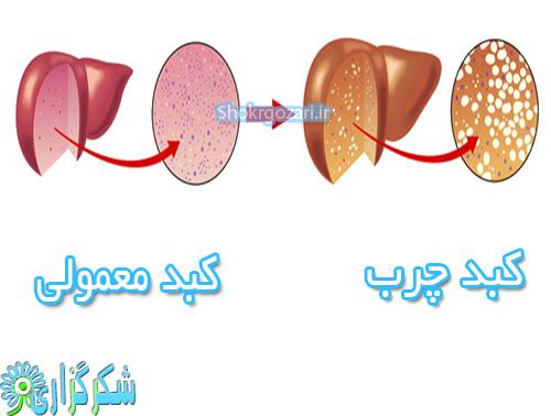 کبد-چرب-عکس-تصویر-چربی-کبد-درمان-علت-عامل