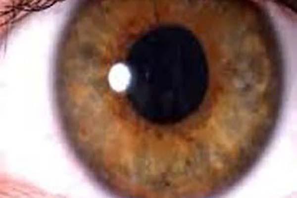 پزشکی: کشف زوال عقل از روی چشم