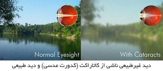 دید غیرطبیعی ناشی از کاتاراکت و دید طبیعی