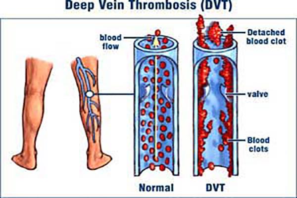 پزشکی: لخته خون در پا با کسی شوخی ندارد!