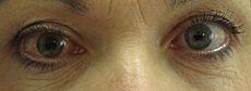 http://s5.picofile.com/file/8144258800/230px_Acute_angle_closure_glaucoma.JPG