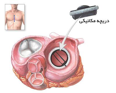 دریچه مکانیکی قلب