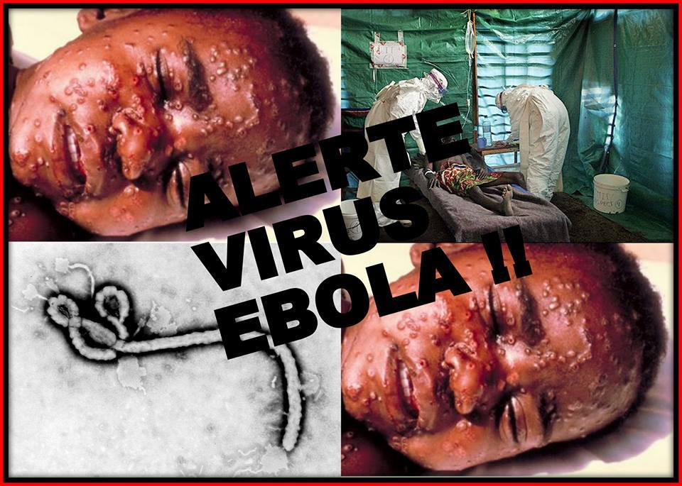 http://s5.picofile.com/file/8146024042/ebola2.jpg