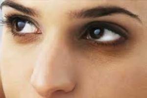 دلایل سیاهی دور چشمم چیست؟