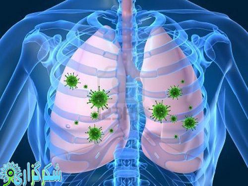ذات الریه عفونت ریه-عفونت های ریوی امراض ریوی-آنفولانزا علائم نشانه ها - شکرگزاری