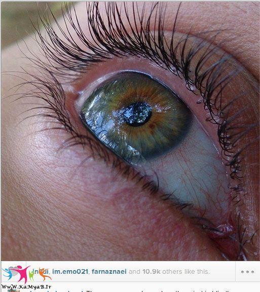 چشم از نمای بسیار نزدیک