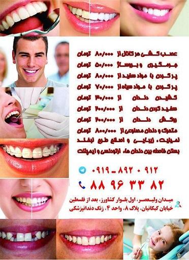 قیمت اسب کشی دندان